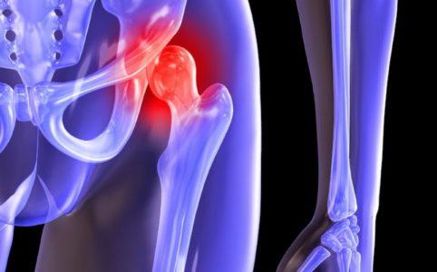 Когда остеоартрит требует замены тазобедренного сустава?